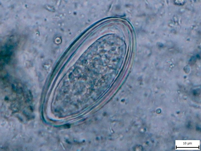 Enterobius vermicularis (stolice člověka)